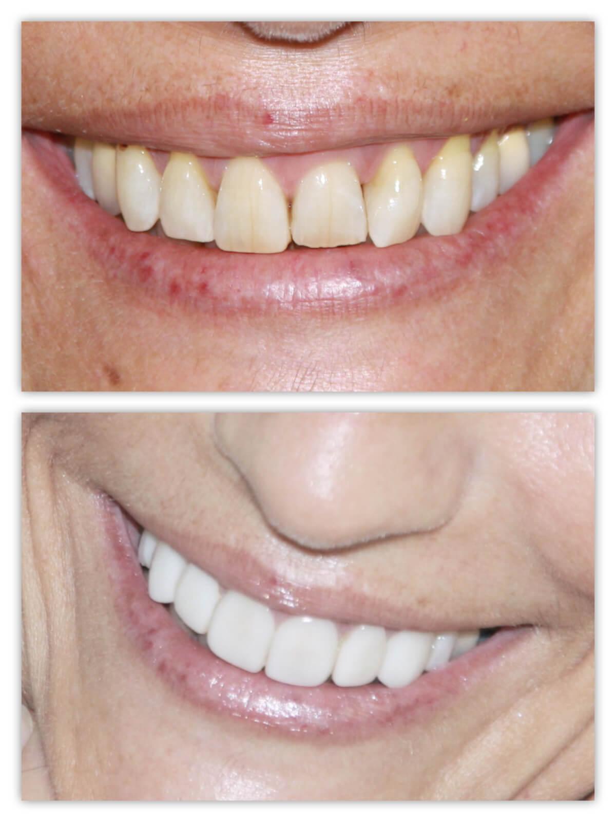dentiste facette paris